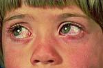 allerkidxs